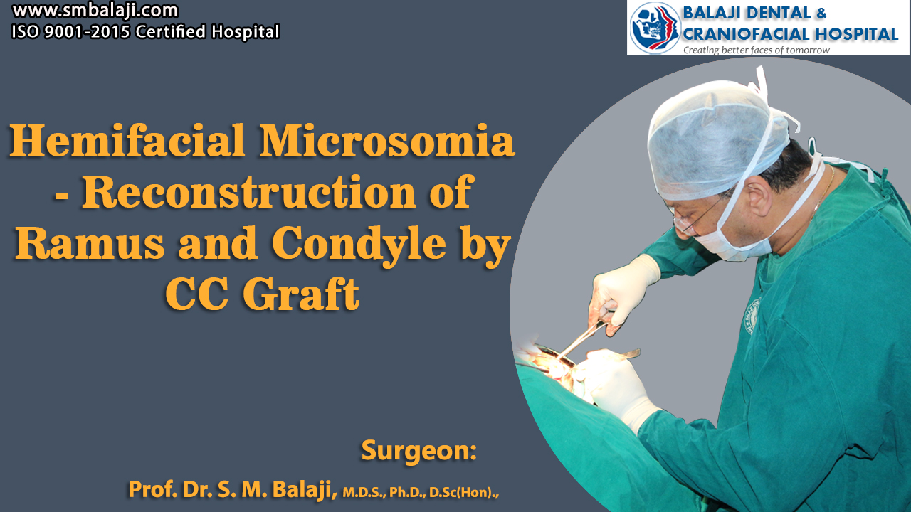 Hemifacial Microsomia - Reconstruction of Ramus and Condyle by costochondral Graft