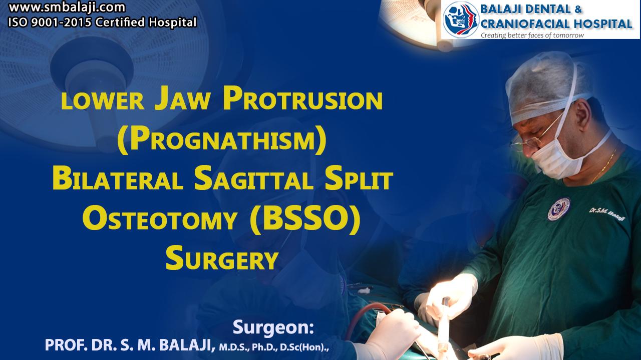 Lower Jaw Protrusion ( Prognathism ) Bilateral Sagittal Split Osteotomy (BSSO) Surgery