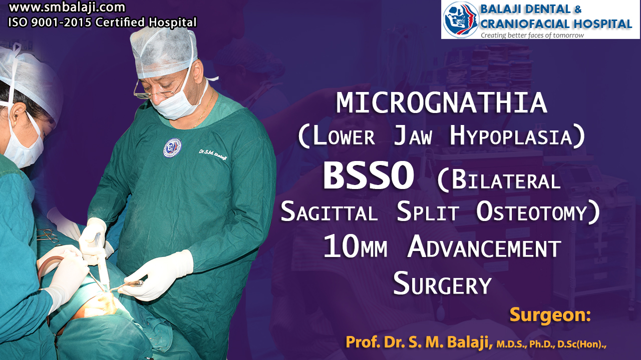 Micrognathia (Lower Jaw Hypoplasia) Bilateral Sagittal Split Osteotomy 10mm Advancement Surgery