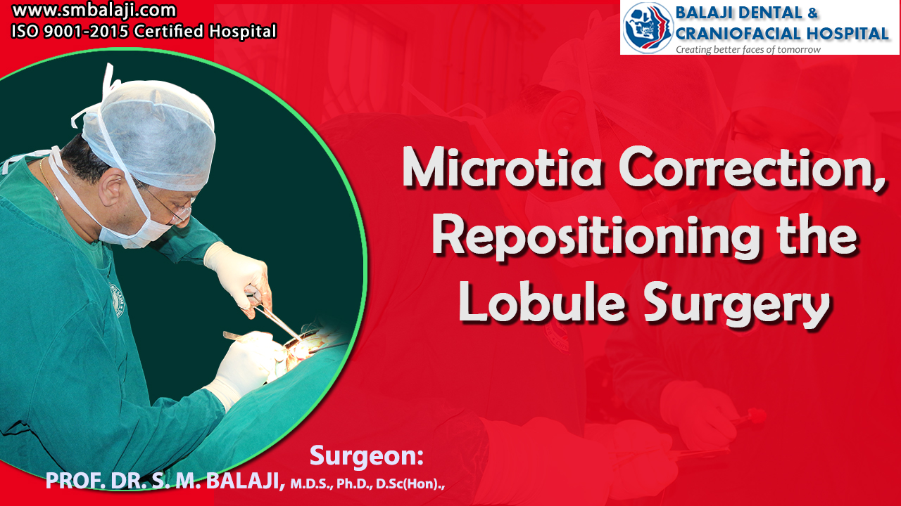 Microtia Correction, Repositioning the Lobule Surgery