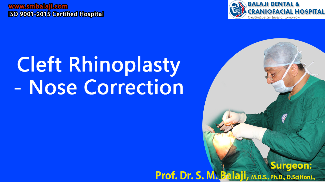 Cleft Rhinoplasty - Nose Correction