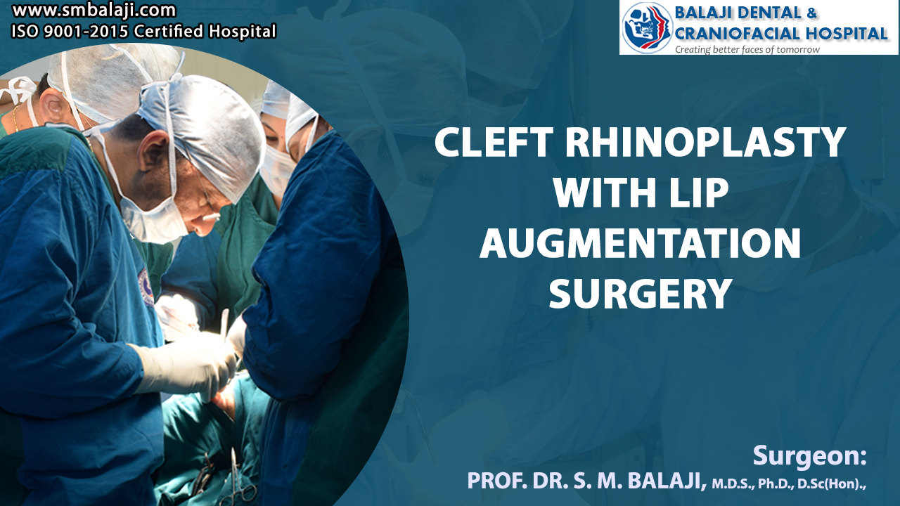 Cleft Rhinoplasty with Lip Augmentation Surgery