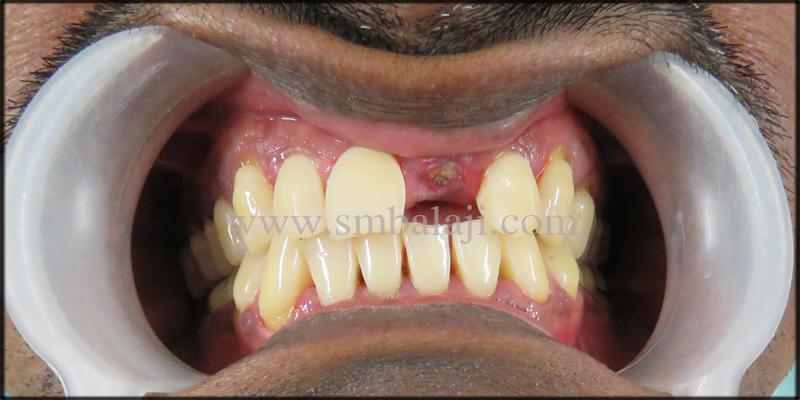 Patient With Broken Upper Front Tooth