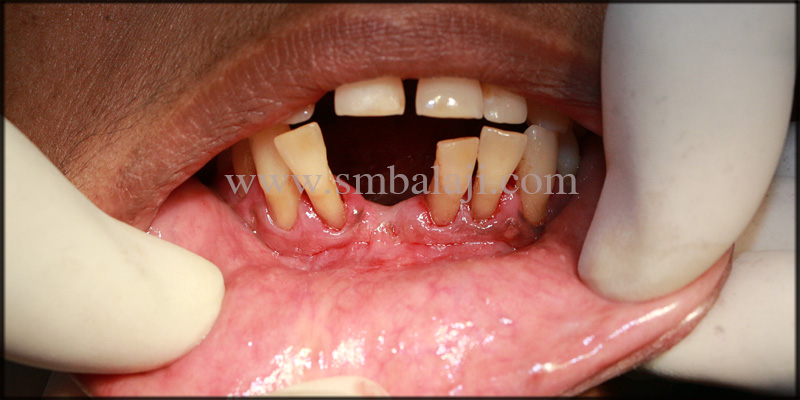 Patient with unpleasant looking lower anteriors