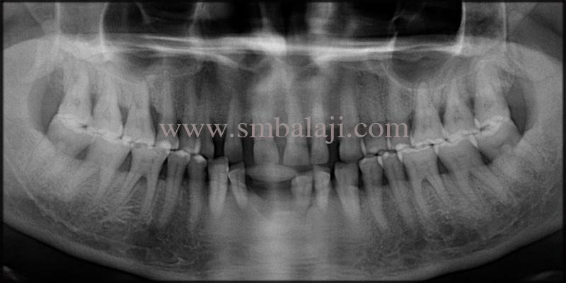 Pre-operative OPG shows generalized bone loss in all teeth