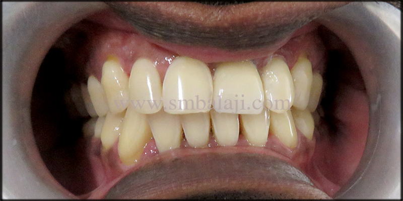 Natural looking prosthesis fixed onto the dental implant
