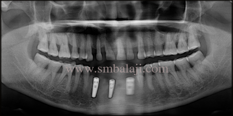 Post- operative OPG shows well osseointegrated dental implant