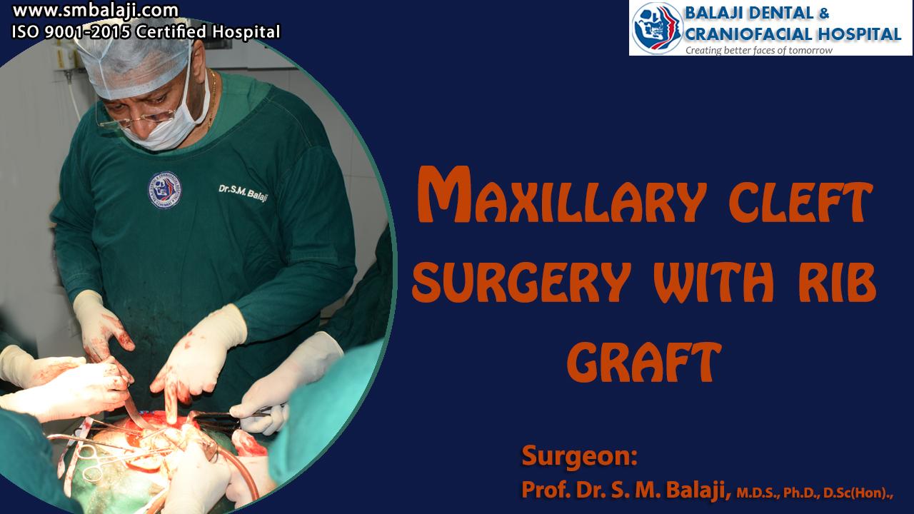 Maxillary Cleft Surgery with Rib Graft