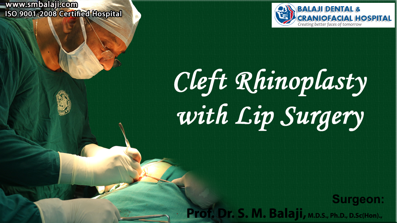 Cleft Rhinoplasty with Lip Surgery