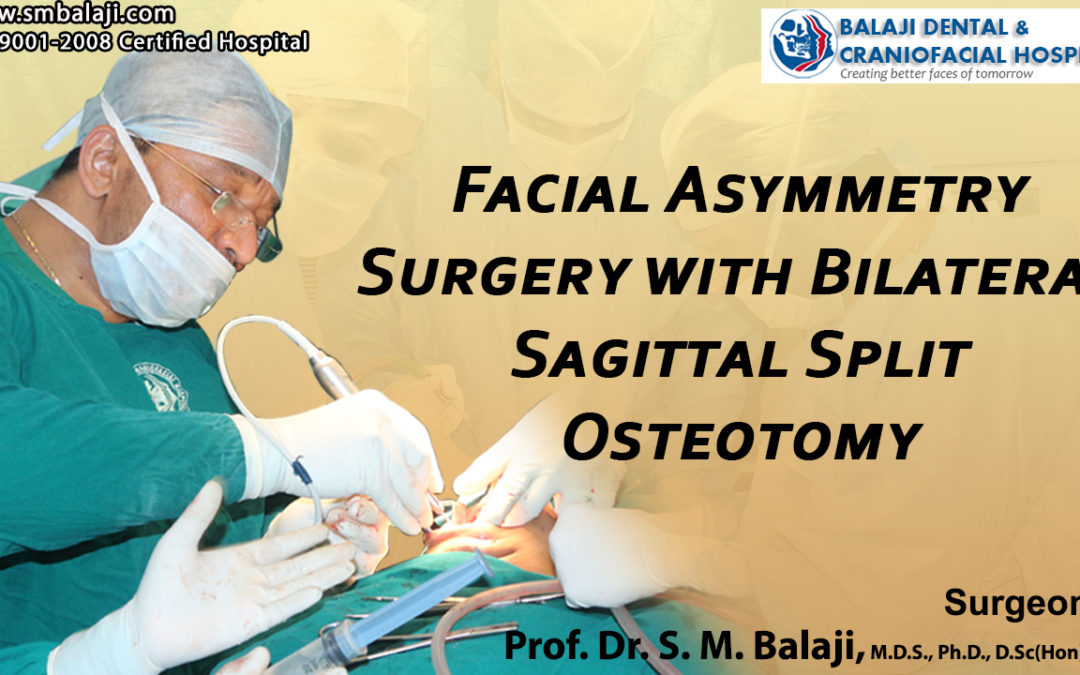 Facial Asymmetry Surgery with Bilateral Sagittal Split Osteotomy