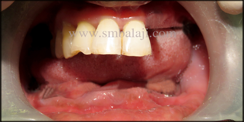 Patient With Missing Teeth In The Upper And Lower Jaw