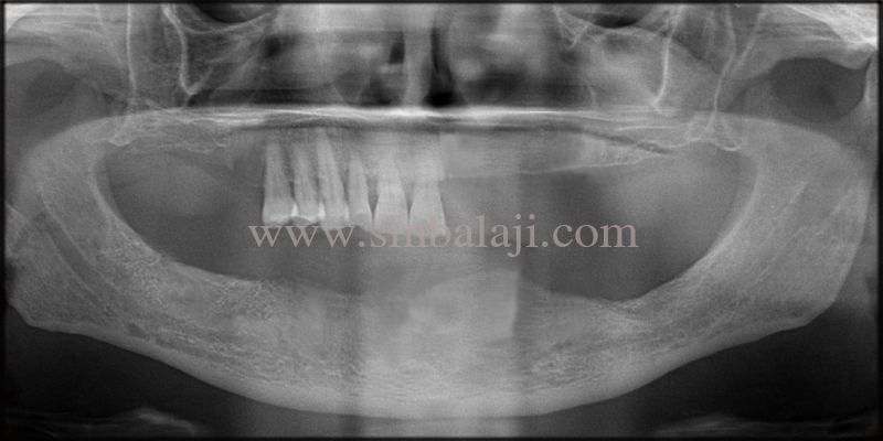 OPG taken shows missing teeth with sufficient bone height for dental implant placement