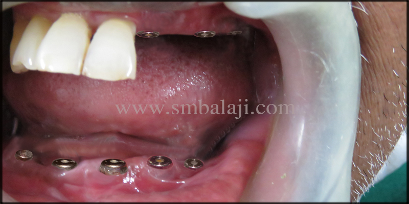 Dental Implants Placed At The Relative Site In The Upper And Lower Jaw