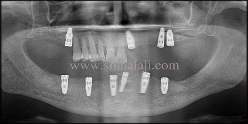 Post- Operative Opg Taken Shows Dental Implants Well Integrated With The Underlying Jaw Bone