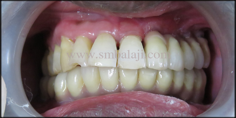 Natural looking fixed ceramic prosthesis placed onto the dental implants