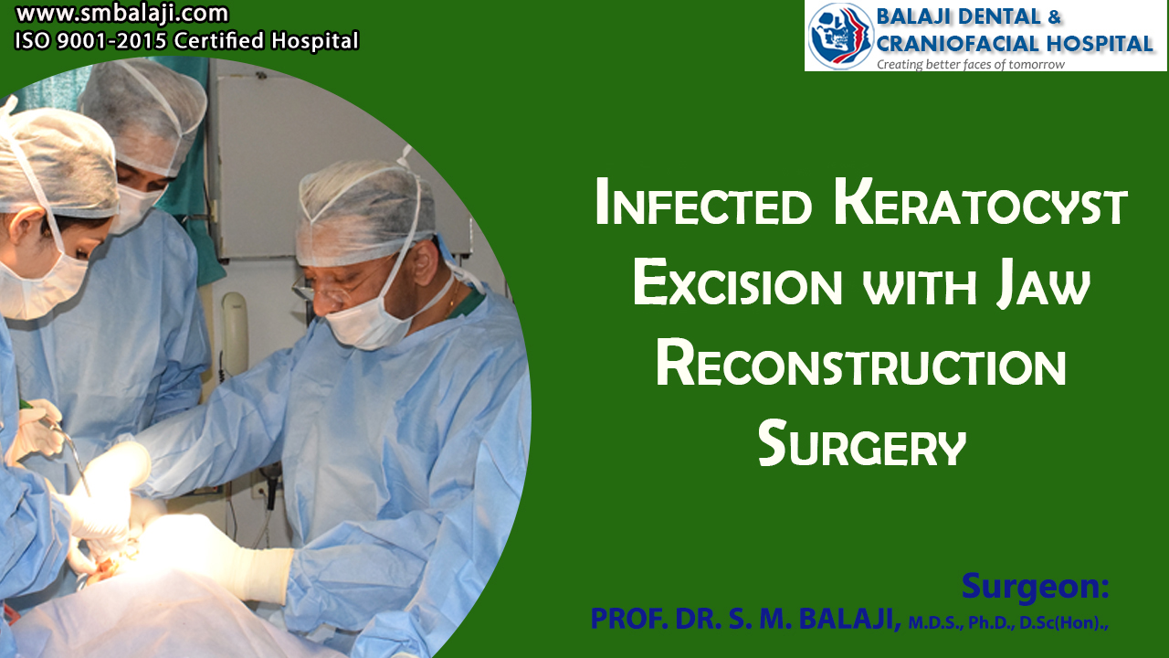 Infected keratocyst excision with Jaw Reconstruction Surgery
