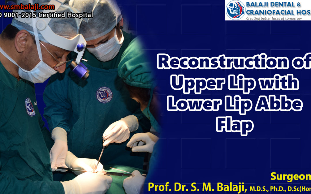 Reconstruction of Upper Lip with Lower Lip Abbe Flap
