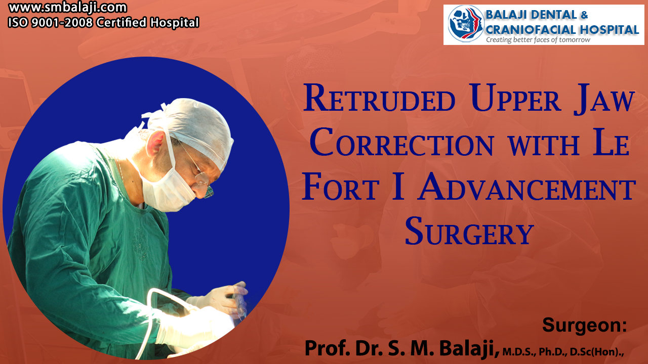 Retruded Upper Jaw Correction with Le Fort I Advancement Surgery