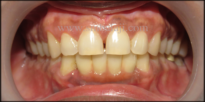 Natural looking prosthesis fixed onto the dental implants