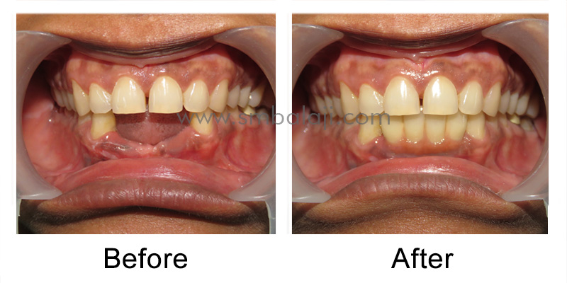 Infected Mobile Teeth Replaced With Dental Implants