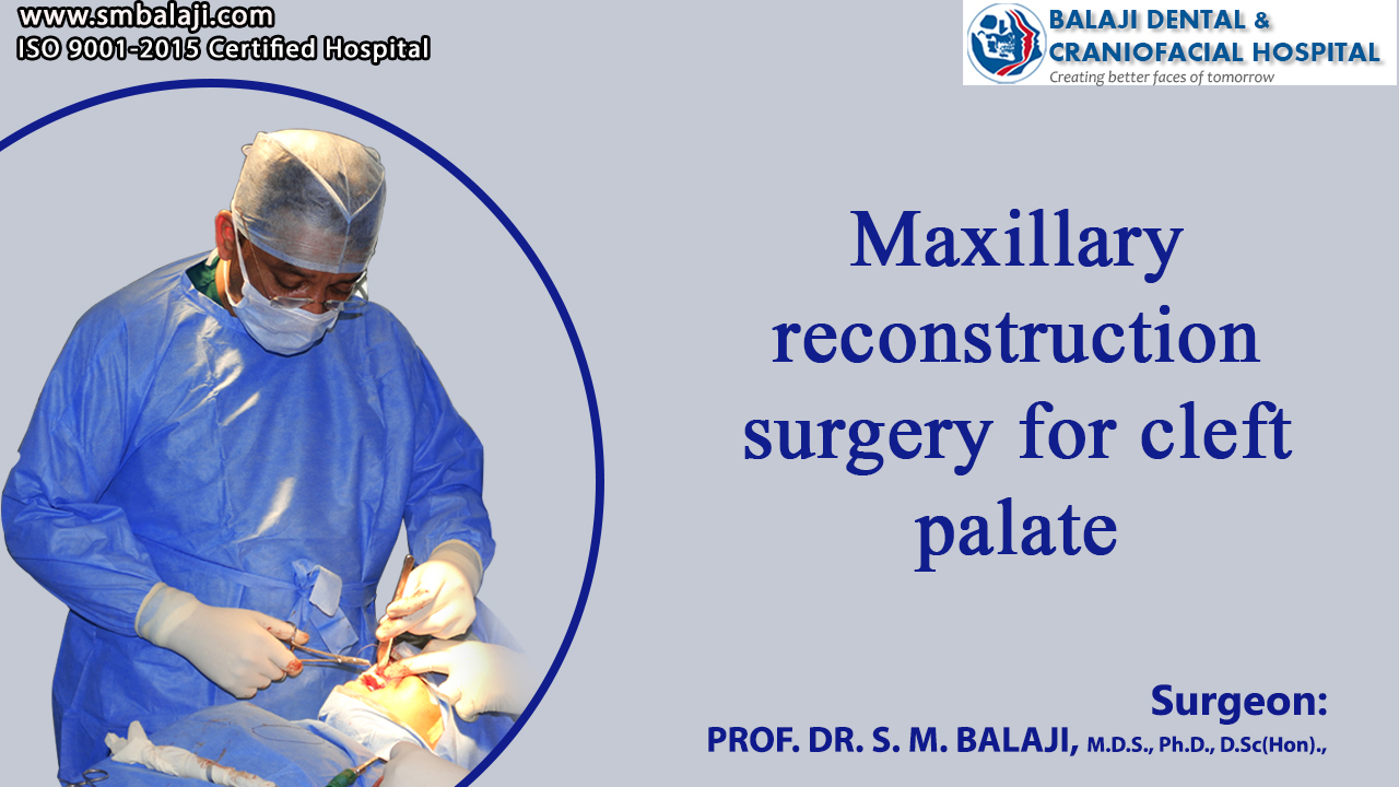 Maxillary reconstruction surgery for cleft palate