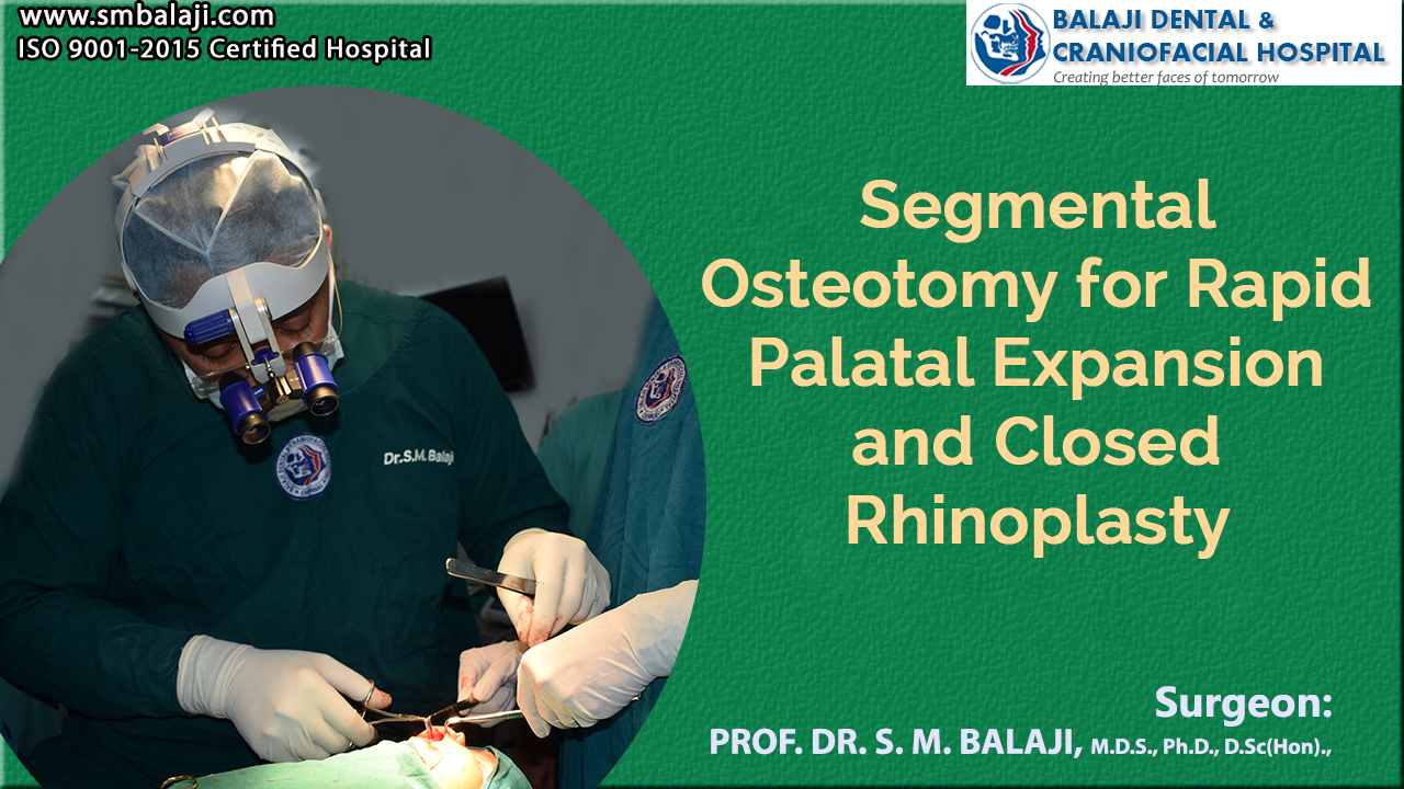 Segmental Osteotomy for Rapid Palatal Expansion and Closed Rhinoplasty