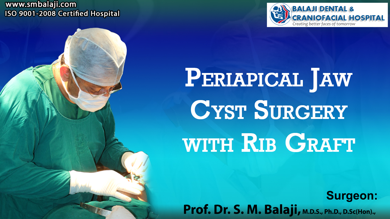 Periapical Jaw Cyst Surgery with Rib Graft