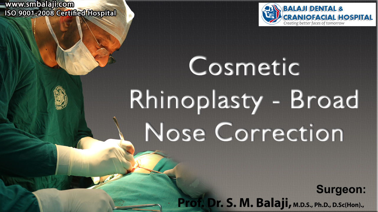 Cosmetic Rhinoplasty - Broad Nose Correction