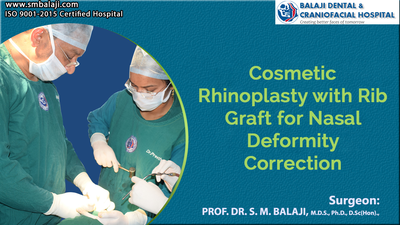 Cosmetic Rhinoplasty with Rib Graft for Nasal Deformity Correction