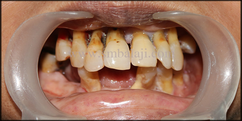 Unhappy patient with compromised teeth condition