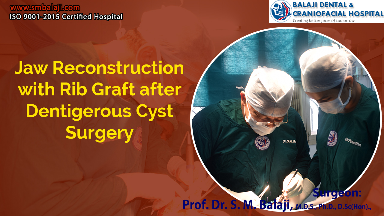Jaw Reconstruction with Rib Graft after Dentigerous Cyst Surgery