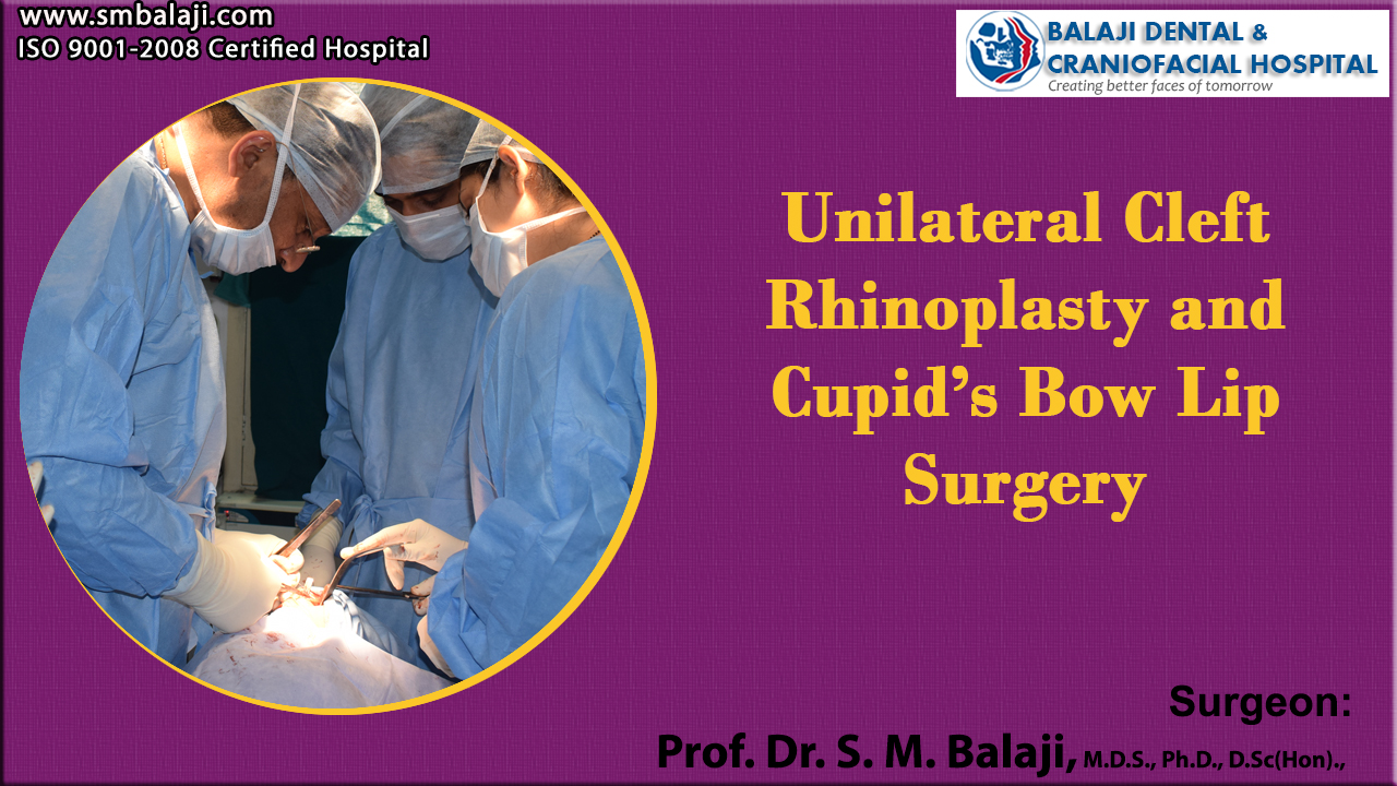 Unilateral Cleft Rhinoplasty and Cupid's Bow Lip Surgery