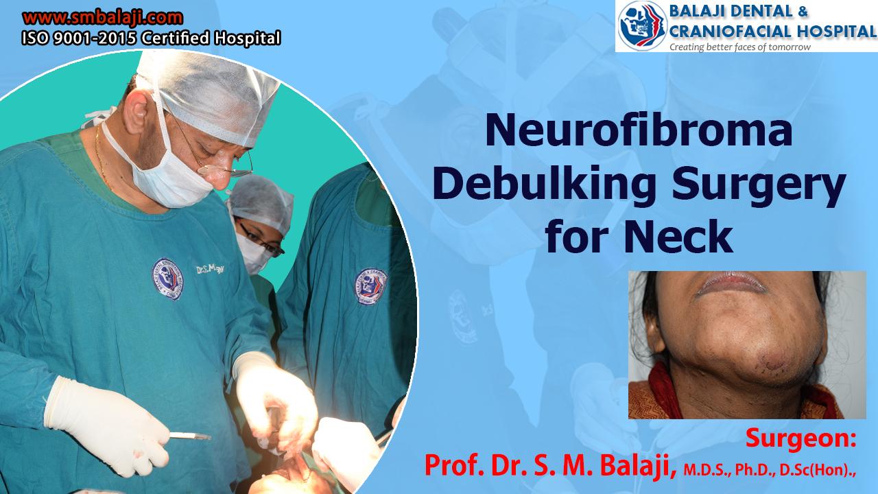 Neurofibroma Debulking Surgery for Neck