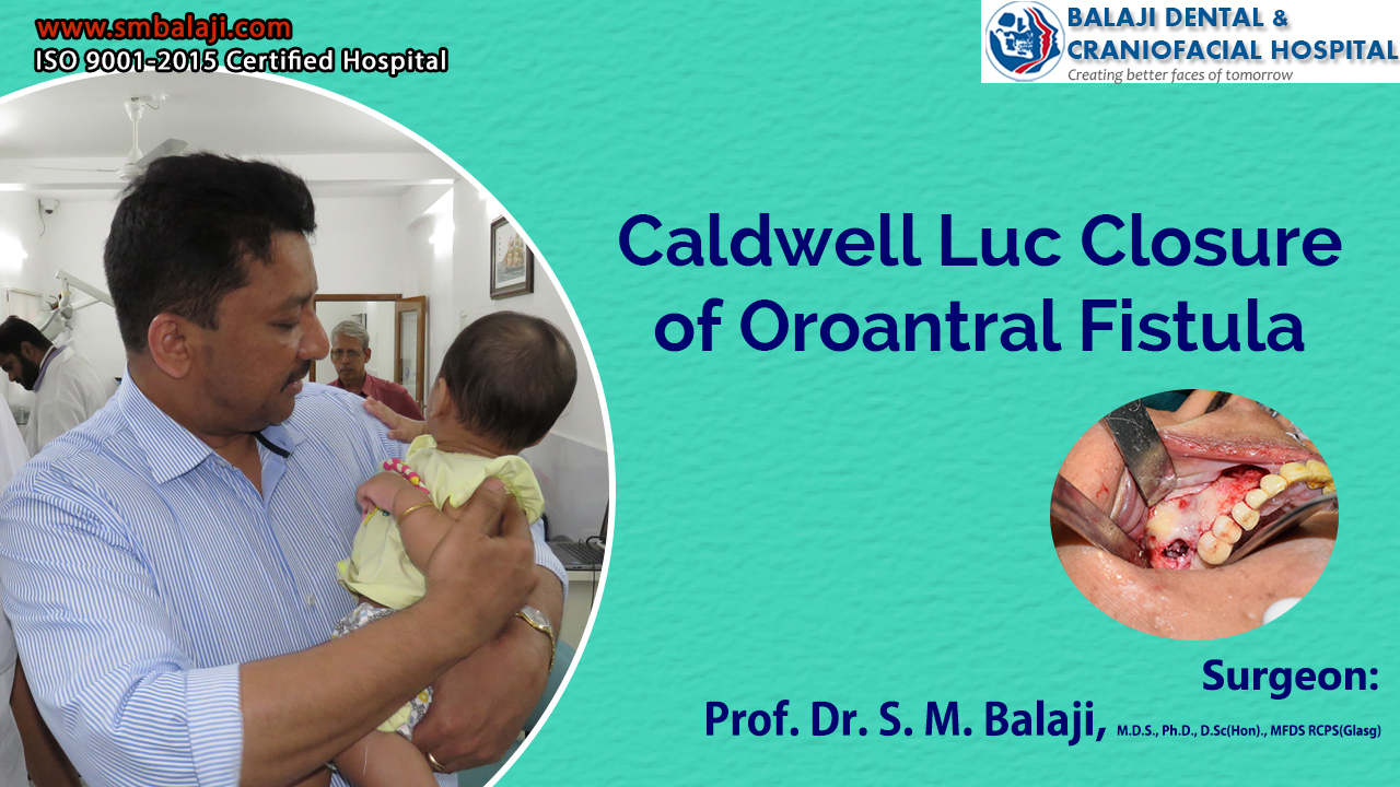 Caldwell Luc Closure of Oroantral Fistula