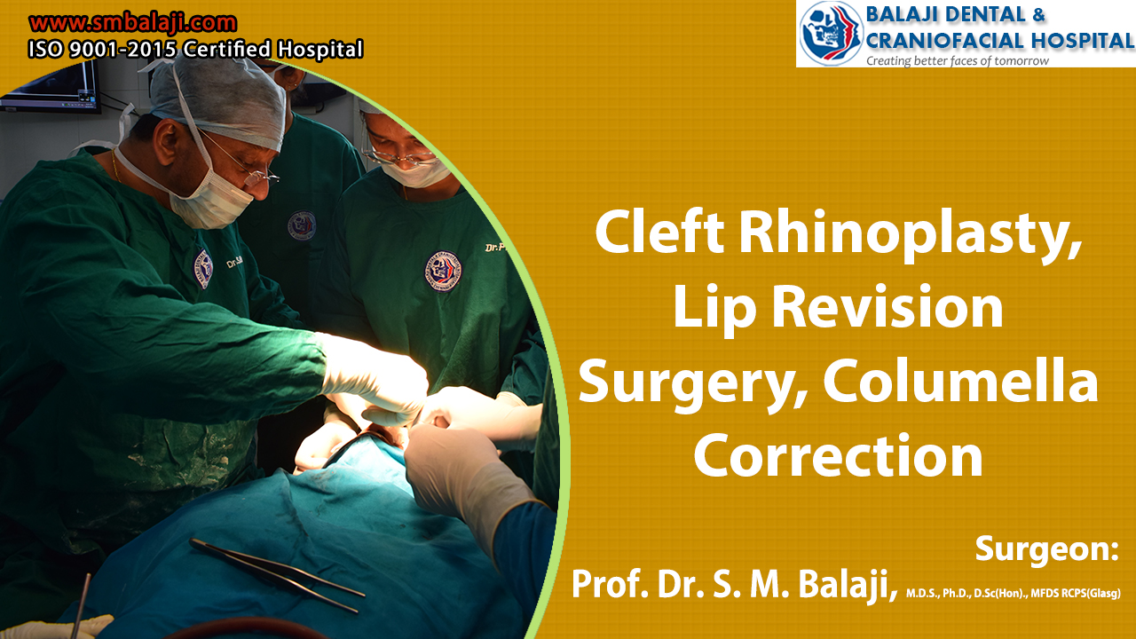 Cleft Rhinoplasty, Lip Revision Surgery, Columella Correction