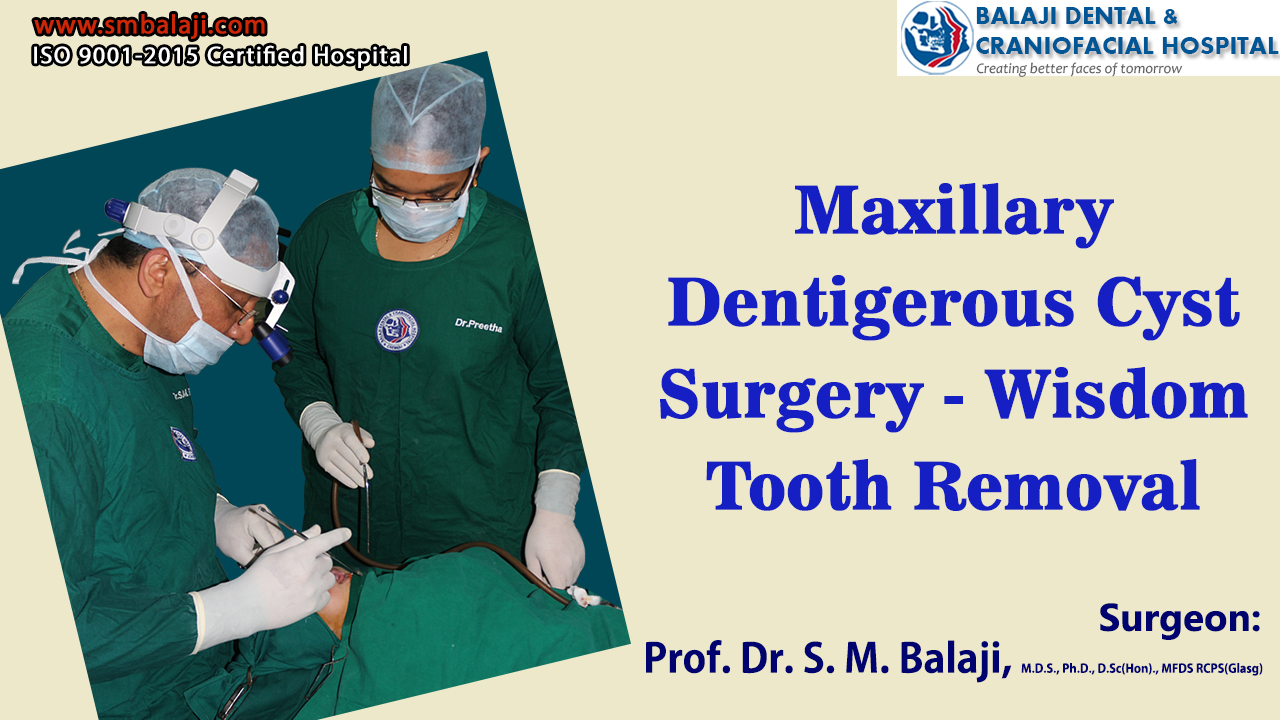 Maxillary Dentigerous Cyst Surgery - Wisdom Tooth Removal