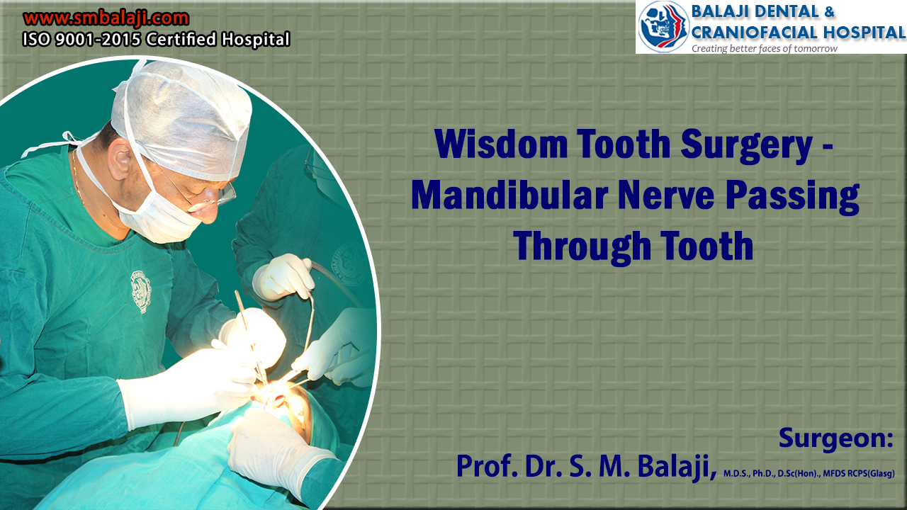 Wisdom Tooth Surgery - Mandibular Nerve Passing Through Tooth