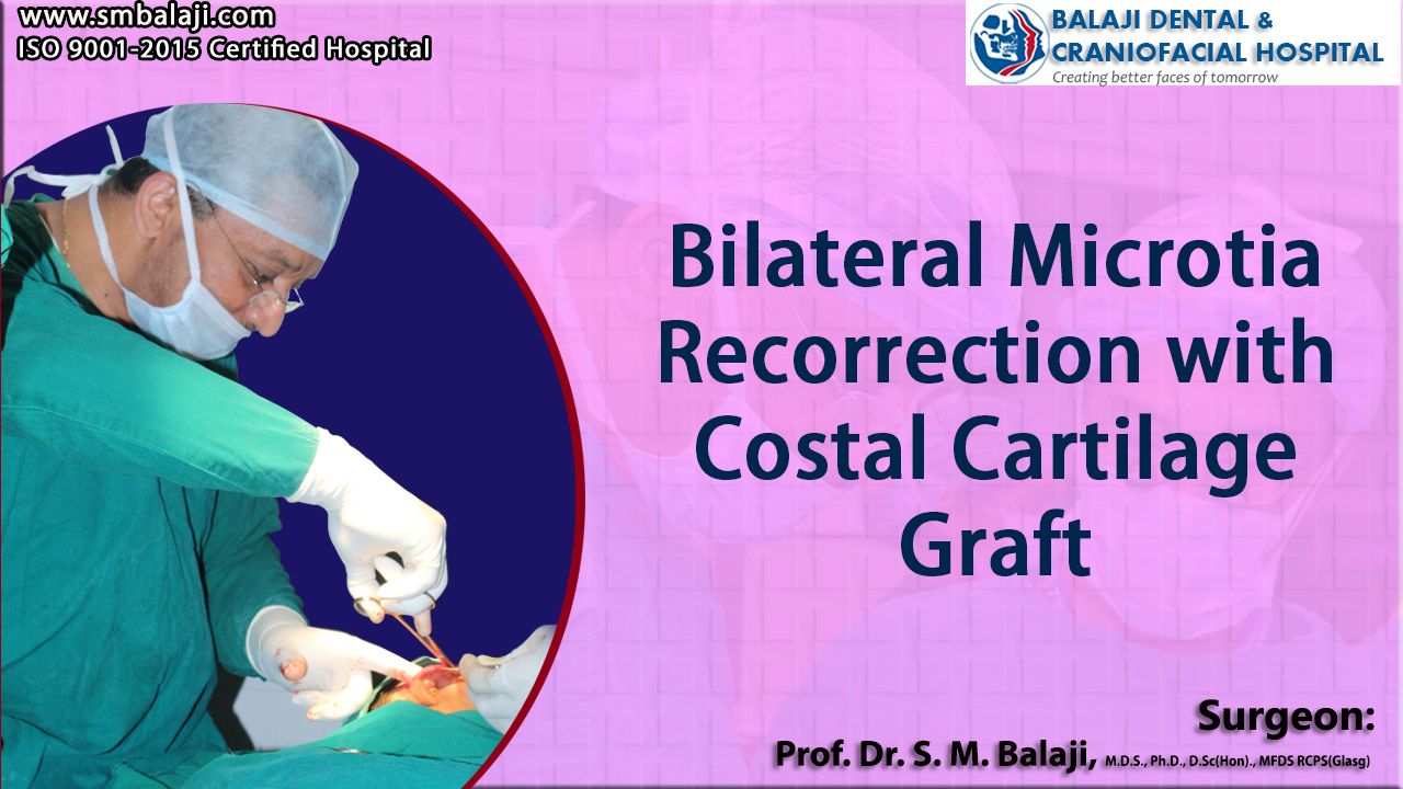 Bilateral Microtia Recorrection with Costal Cartilage Graft