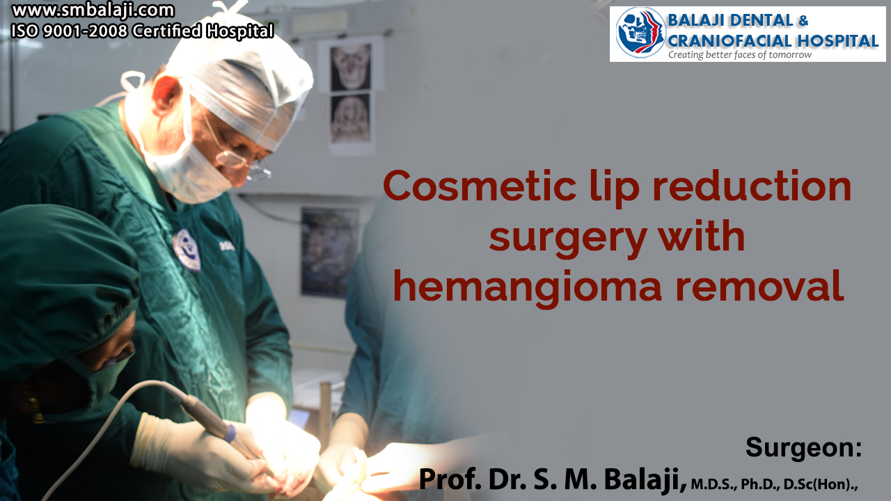 Cosmetic lip reduction surgery with hemangioma removal