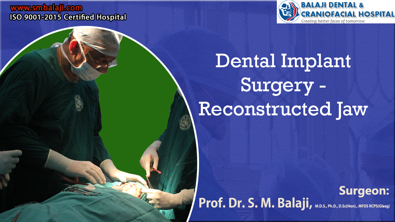 Dental Implant Surgery - Reconstructed Jaw with Bone Grafts