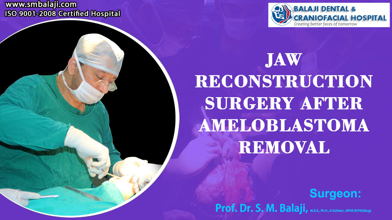 Jaw Reconstruction Surgery after Ameloblastoma Removal
