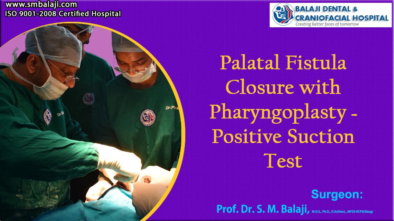 Palatal fistula closure Pharyngoplasty – Positive Suction Test