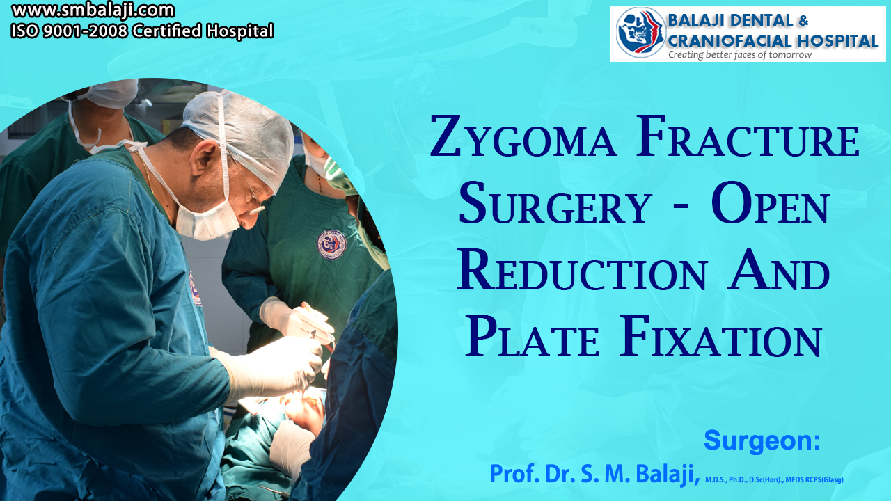 Zygoma Fracture Surgery - Open Reduction and Plate Fixation
