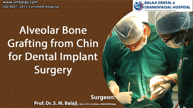 Alveolar Bone Grafting from Chin for Dental Implant Surgery