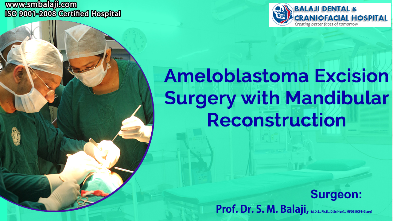 Ameloblastoma Excision Surgery with Mandibular Reconstruction