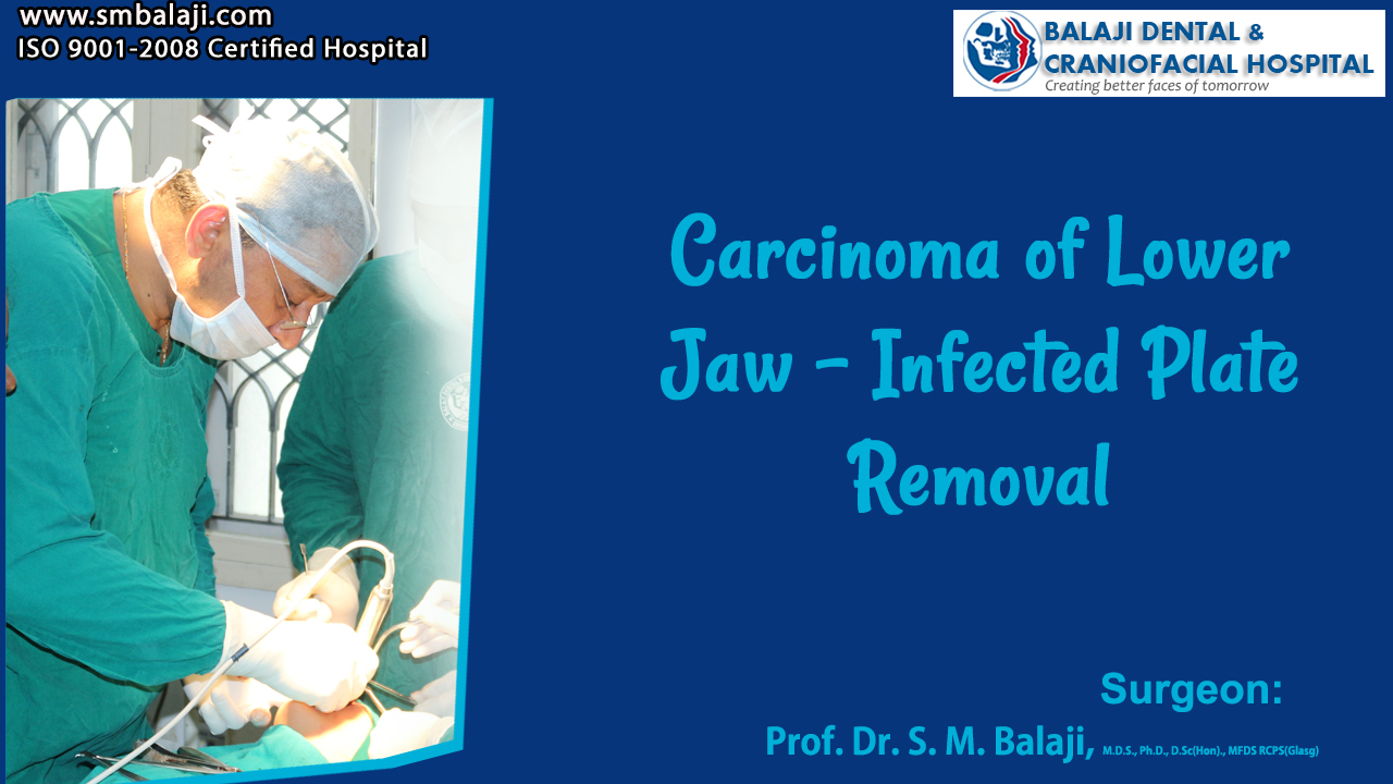 Carcinoma of Lower Jaw - Infected Plate Removal Surgery