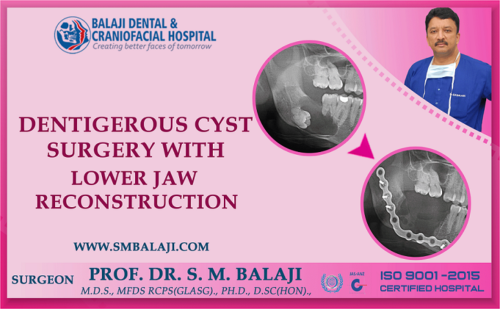 Dentigerous Cyst Surgery with Lower Jaw Reconstruction