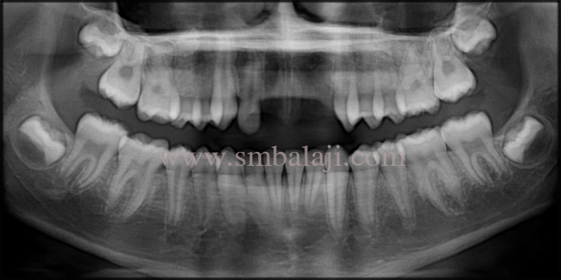 Pre-operative OPG shows complete missing of teeth at the involved site with no pathological findings in the surrounding bone structure