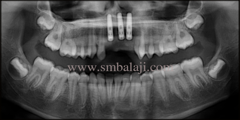 Post-operative OPG taken after 3months shows well osseointegrated dental implants
