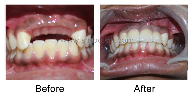 Replacement of Missing Teeth with Dental Implants for a Dazzling Smile